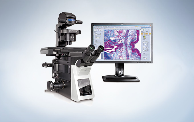 UC90 with Microscope and Monitor